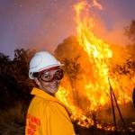 Women's site burn
